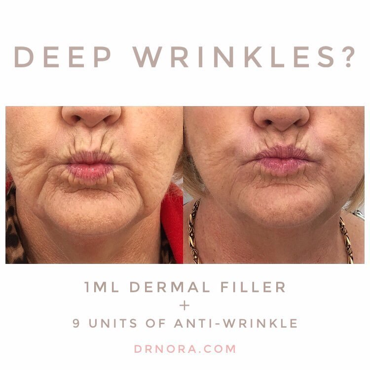 Suffering from deep mouth lines?With the combined use of filler and anti-wrinkle treatment it's easy to reduce the appearance of lower face lines. The patient has a noticeable difference in the appearance of her mouth lines after using 1ml of dermal...