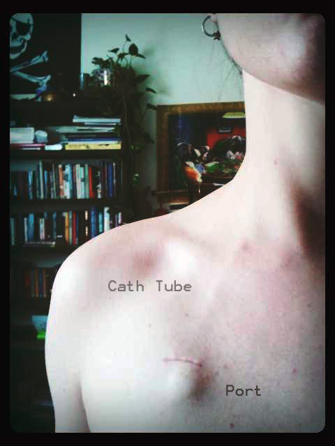 My Portcath is all healed up. You can kind of see the tube which is really cool and eerie all at once. I keep trying to get my sister to touch it but she won't.