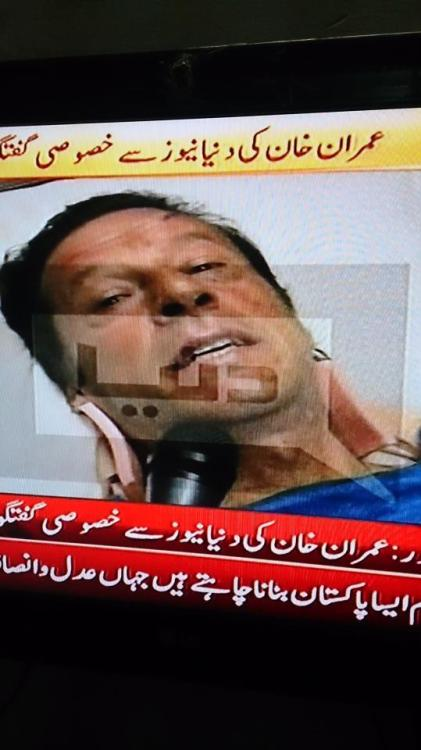 His hair removed due to excessive stiches, backbone injured & cant move body due to excessive pain but yet he is back to send a message to nation to vote for him and their better future.'I have fought for 17 years in Pakistan for our rights, do the right thing on 11th May '13 and change your destiny. Quran says that Allah doesn't help those who dont help themselves. Go out and vote for the idelogy, not the personalities. Go and vote for new Pakistan.' - Imran Khan, chairman PTI. If this doesnt inspire you and move you, so I feel sorry for you and your existense. 61 year old took a fall from 15ft and yet he is up. He deservs more than a vote. Long live IK, long live Pakistan.
