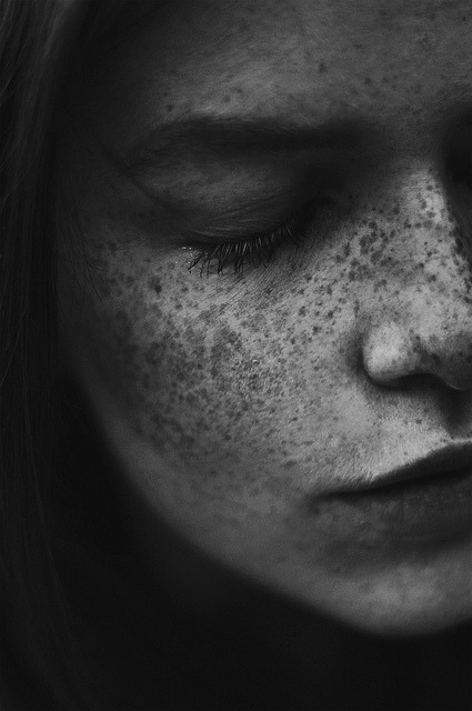 vacants:  (by linnéa jacobson)  freckles