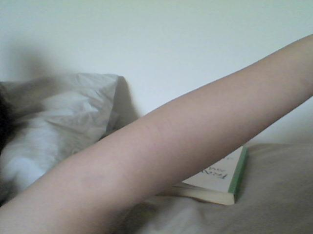 to-thedregs:  look at my gross arm; self harm scars, a burn mark at the top by my wrist, a huge bruise, fat and then Franny & Zooey in the back My life summarized in one picture