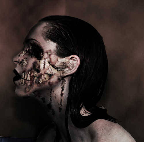 Dead Men Walking – The Bizarre Condition Known as Cotard's Syndrome One of the world's strangest and rarest mental disorders is Cotard's Syndrome. Also known as the Cotard Delusion, the Nihilistic Delusion, and the Walking Corpse Syndrome, CS causes sufferers to believe that they are dead (figuratively or literally) and do not exist. I always thought the walking dead only existed in movies and video games. Until I read about Cotard's Syndrome (CS), that is. Apparently, people who suffer from this rare but very real mental disorder actually believe that they have died and are not of this world anymore. The condition is named after a 19th century French neurologist, Jules Cotard. In 1880, he presented the first patient to be diagnosed with the condition at a lecture, calling her Mademoiselle X. She is said to have suffered from significant self-loathing, a denial of the existence of God, the Devil, and several parts of her own body. She also believed she was damned for eternity and incapable of dying a natural death, so she had no reason to eat anymore. Mademoiselle X eventually starved to death.  Read more.