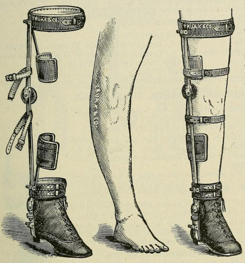 sutured-infection:   Deformity apparatus: Chas. F. Stillman's long bow-leg braces. 1893 medical supply catalogue.