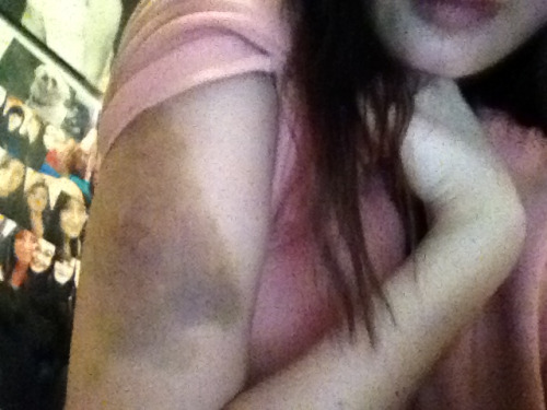 My bruise my friend gave me because he was mad at me:/