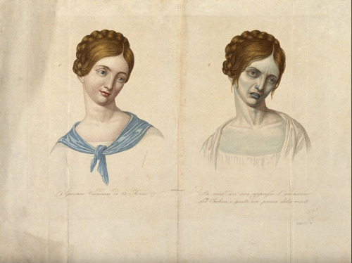 A young Venetian woman, aged 23, depicted before and after (Wellcome Images), from 'On Cholera in Nineteenth-Century England (via things)