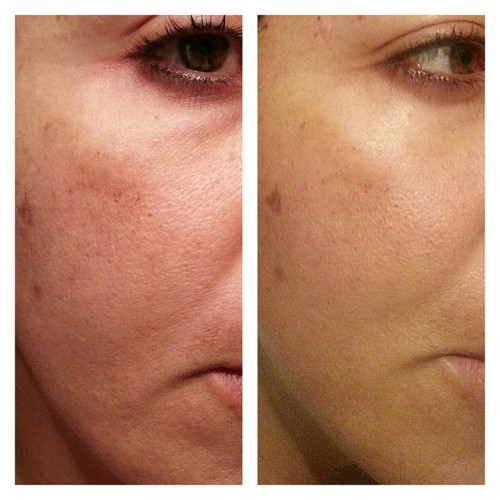 Closer look… and this is only 2 weeks - 2 WEEKS!  #nerium #smoothskin #neriumad.