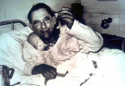 collectivehistory:  Recipient of the world's first human heart transplant, Louis Washkansky, in Groote Schuur Hospital, Cape Town, three days after the surgery, December 6, 1967.  Unfortunately, he died eighteen days after the transplant of pneumonia due to his weakened immune system.