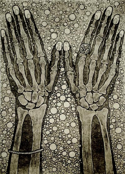 2headedsnake:  Tokoha Matsuda 'Hands' 'Feet' etching and aquatint