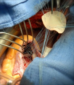 medicinenotes:    Repair of ventricular sepal defect This photograph shows the surgical repair of a traumatic ventricular septal defect (VSD). A VSD is a hole between the right and left ventricles of the heart and is usually seen as a congenital condition, known as a 'hole in the heart'. A traumatic VSD, as seen in this case, is a rare complication of chest injury. It might manifest immediately after trauma, leading to heart failure and an inability to stabilise a patient, or it might be delayed and detected months later. Traumatic VSDs can be treated in a variety of ways, depending on the effect they have on the patient. Treatment options range from monitoring and a conservative approach to open surgery, as is depicted here. In this image, the VSD is seen at the bottom, and a bovine patch is being parachuted and stitched into place to seal the defect. Credit: Henry De'Ath, Royal London Hospital / Wellcome Images