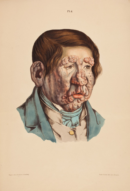 och-annie:  Disturbing and lovely. A man with leprosy illustration.  Danielsen and Boeck studied leprosy at St. Jörgen's Hospital in Bergen, Norway. The result of their important investigations were published in their epoch-making work Om Spedalskhed (On leprosy) in 1847, accompanied by a folio atlas with 24 beautifully executed lithographed plates in colour, drawn by J. L. Losting. via: Wunderkammer