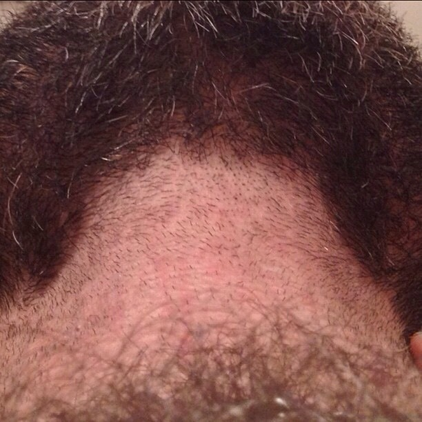 2018-06-04 05:22:50 - planbear beardburnme http://www.neofic.com