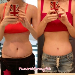 funeralformyfat:  Day 7 vs day 37 post-tummy tuck I will be ready for summer in no time!