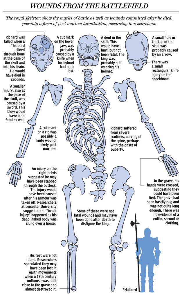 "Wounds from the battlefield: What Richard III's remains revealed about war-scarred kingFor centuries, the location of King Richard III's body has been unknown. Records say he was buried by the Franciscan monks of Grey Friars at their church in Leicester, 160 kilometres north of London. The church was closed and dismantled after King Henry VIII dissolved the monasteries in 1538, and its location eventually was forgotten.Then, last September, archaeologists searching for Richard dug up the skeleton of an adult male who appeared to have died in battle.Bone specialist Jo Appleby said the 10 injuries to the body were inflicted by weapons like swords, daggers and halberds and were consistent with accounts of Richard being struck down in battle — his helmet knocked from his head — before his body was stripped naked and flung over the back of a horse in disgrace.She said some scars, including a knife wound to the buttock, bore the hallmarks of ""humiliation injuries"" inflicted after death."