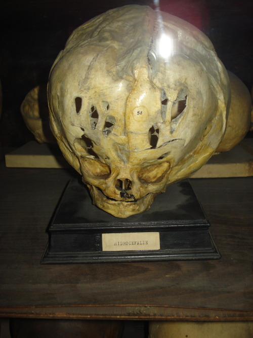 darwinsgirl:  Skull with hydrocephalus- fluid build up in the brain in Romania.   Where were these specimen in Romania?