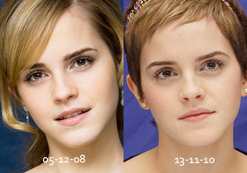 Emma Watson Nose Job In this next example the noses