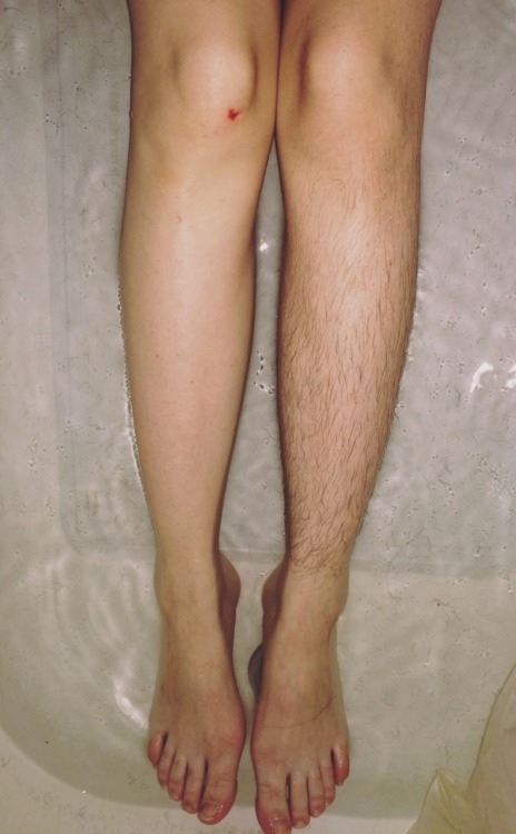 SUPER HAIRY LEGS