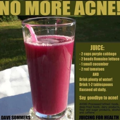 You got a breakout???? Juice up! Get rid of acne by making this juice! Try it! #bottomsup #juicer #breville #juicing #juicefast #juiceitup #juiceforlife