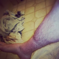 Pretty intense sock line. Haha! #swollen #gross #socks