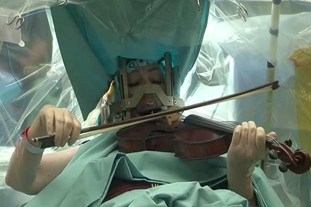 Wanita Ini Tetap Asyik Bermain Biola Saat Jalani OperasiOtak  Umumnya, seseorang yang menjalani tindakan medis operasi pasti diberikan suntikan bius oleh sang dokter. Namun, ada yang berbeda pada wanita ini.