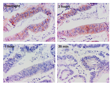 Figure 1. from Cytoplasmic Overexpression of HER2: a Key Factor in Colorectal Cancer published in Clinical Medicine Insights: Oncology