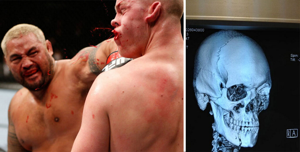 bleacherreport:  UFC fighter Stefan Struve shared his X-rays of his broken jaw from his latest fight against Mark Hunt. Ouch.h/t Yahoo! Sportsvia https://twitter.com/StefanStruve  Wow. I'm I the only one who is fascinated by this? Reblog.
