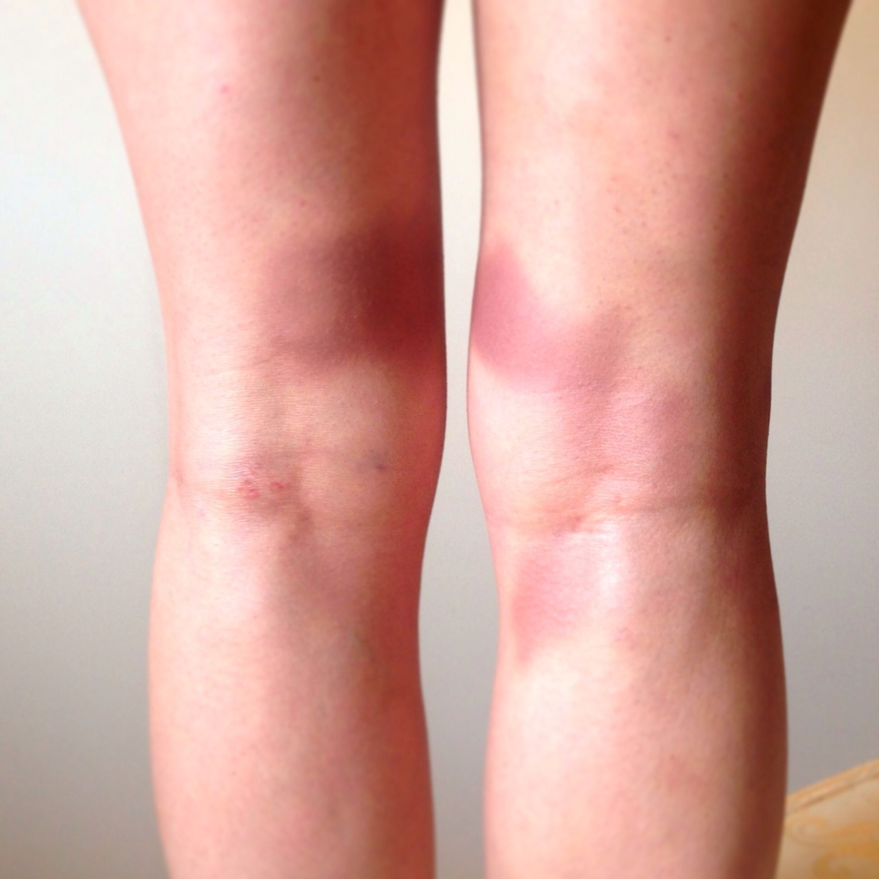 littlejek:  Beautiful back of knee bruising just in time for my trip away. Perfect timing.