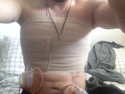 Finally got my top surgery :D