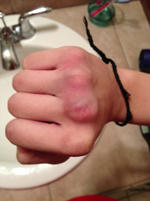 Gnarly knuckle bruises. I'm sure I popped a vain.