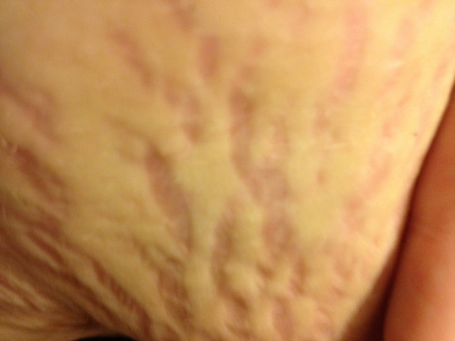 My stretch marks are abnormally deep… :( I know these won't go away!