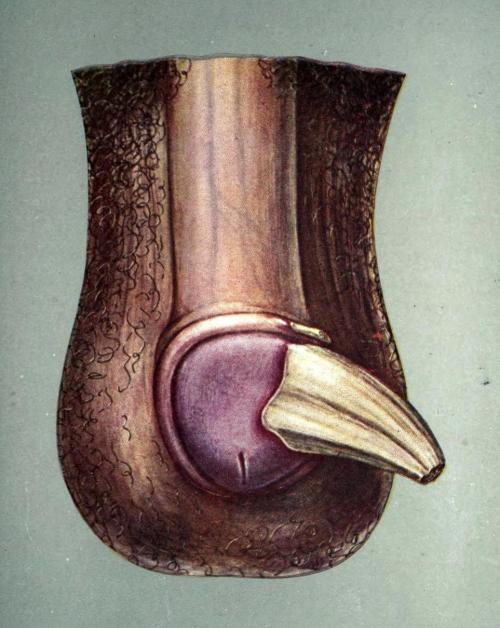 biomedicalephemera:  Horny growth of the penis Horny growths on the skin, also known as cornu cutaneum, are keratinous skin tumors, caused by overgrowth of keratin in the dermis. Since they're avascular (they have no bloodflow), they can be easily removed with a scalpel or sharp razor, but the underlying condition will almost always reappear if the site is not treated with radiation, chemotherapy, or (occasionally) cryotherapy. Diseases and Surgery of the Genito-Urinary System. Francis Watson, 1908.