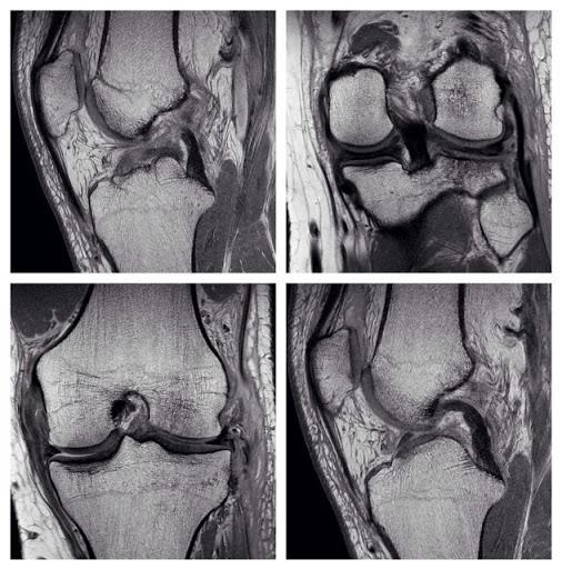 radiopaedia:  Q: Acute knee injury. Which of the cruciate and collateral ligaments are torn? VIDEO ANSWER: http://goo.gl/kbfIV via our Facebook page