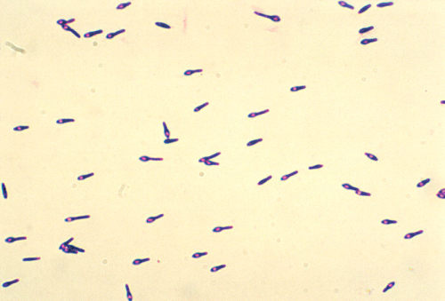 micro-scopic:  Clostridium botulinum