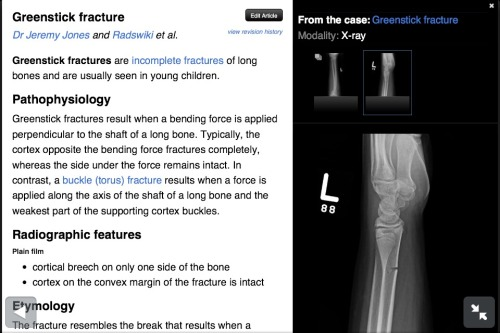 Greenstick Fracture In brief - an incomplete fracture through the radius of a child, owing to their more flexible bones.  Source - Radiopedia (amazing resource)