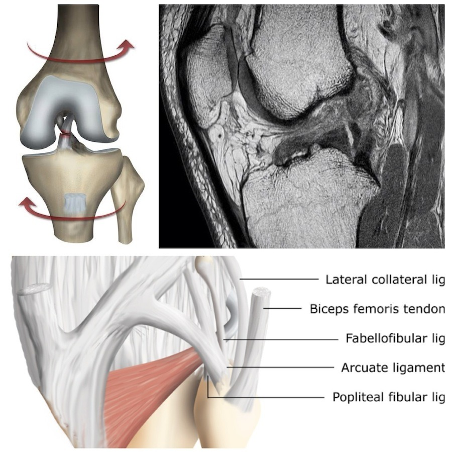 New RadiologyChannel video tutorial - a knee MRI case with multiple significant injuries. Includes a discussion of the MRI features of ACL tear and the secondary signs of ACL injury on MRI and plain radiographs. Click to VIEW VIDEO