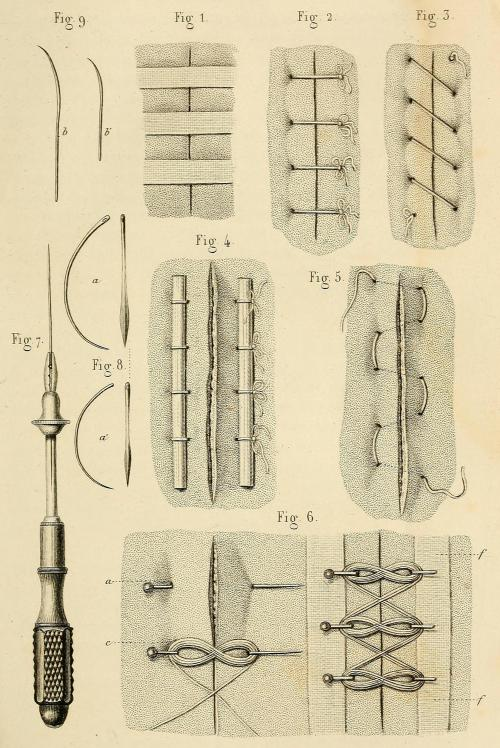 """Wound closure techniques ca. 1855. Fig 1. Closure of the wound without sutures, using adhesives and cloth.Fig 2. Simple interrupted suture.Fig 3. Simple uninterrupted suture.Fig 4. Interfolded suture, with stabilizing rods. Suture passes under wound and is pulled together despite no stitches over the wound site.Fig 5. """"Suture en zigzags"""" - Continuous horizontal mattress suture.Fig 6. Twisted suture. Dieffenbach used this stitch in the early steps of his reconstructive surgery.Fig 7. Suture needle holder.Fig 8. Curved suture needles. Précis iconographique de Médecine Opératoire et d'Anatomie Chirurgicale. Drs. Bernard and Huette, 1854."""
