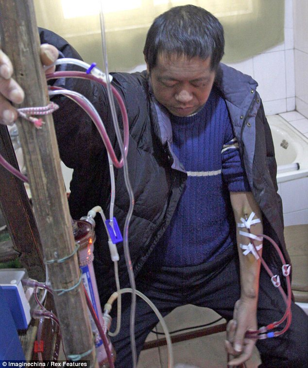Chinese man keeps himself alive for 13 years with HOMEMADE dialysis machine Three times a week, Hu Songwen sits on a small toilet in his home in a rural east China town and fires up his homemade dialysis machine. Hu, who suffers from kidney disease, made it from kitchen utensils and old medical instruments after he could no long afford hospital fees. 'The cost for each home treatment is only 60 yuan (£6), which is 12 per cent of the hospital charge for dialysis,' Hu said. via