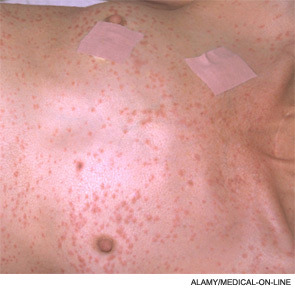 Fat embolism, petechial rash These occur classically after fractures of long bones and present clinically with respiratory distress, fever, tachycardia tachypnea. A distinguishing feature from respiratory distress syndrome or pulmonary contusion, at least on exams, is the characteristic petechial rash on the chest. Fundoscopy and urine may also show evidence of fat embolism in the form of intra-arterial fat globules or fat droplets respectively.