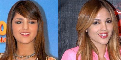 Ariana Grande Before And After Nose Job After: