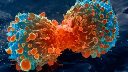 scinerds:  Lung Cancer Cell Dividing  This is a scanning electron micrograph (STEM), coloured by Steve Gscheissner, of a lung cancer cell dividing. The two daughter cells remain temporarily joined at the cytoplasmic bridge.