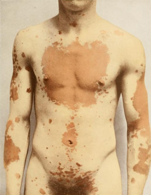 "From the book ""Photographic atlas of the diseases of the skin"" by George Henry Fox photographed by O. G. Mason"