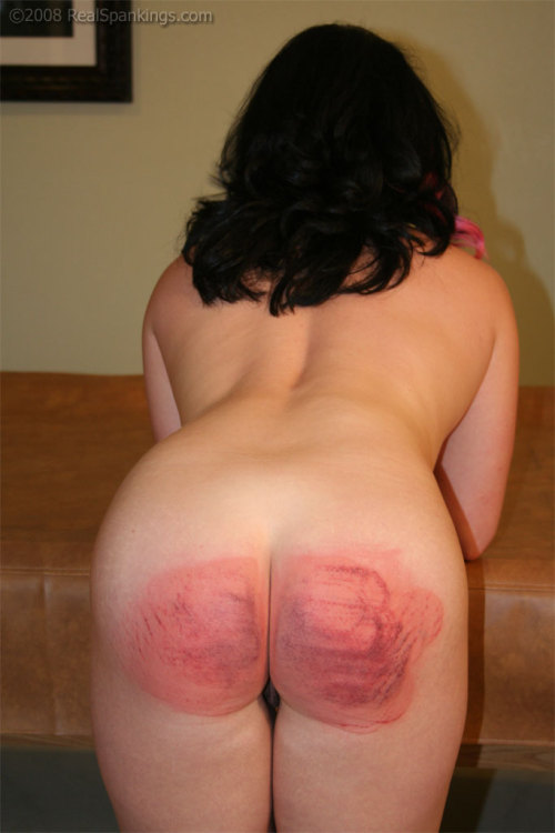 redrump:  spankingnl:  Ouch, she's had a very good spanking! I bet she won't forget this any time soon.  Red Rump of the Day.  Just look at those strap marks!