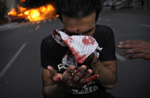 An injured backer of Mir Hossein Mousavi covers his bloodied face during riots in Tehran on June 13, 2009. — OLIVIER LABAN-MATTEI/AFP/Getty Images