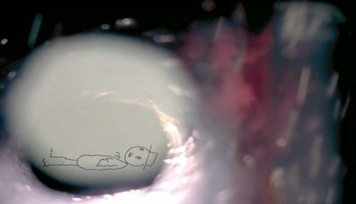 "I Am So Proud of You (Don Hertzfeldt, 2008) ""Bill was born late Tuesday morning into a world of orange and red.  He likes the way the aqua marine rug feels against his hands.  He likes sunbeams and rockets and the smell of the backyard in the early morning.  He likes tigers and trees, and melted chocolate ice cream and watching the lights while falling asleep in the backseat.  Someone sits on the shore and tells him how the waves have been there long before Bill existed and that they'd still be there long after he's gone.  Bill looks out at the water and thinks of all the wonderful things he will do with his life."""