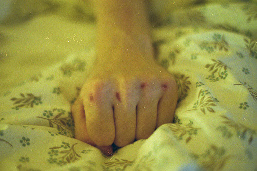 thousandflowerettes:  (via youarebonbon)  Perfect Hand of the Day LIV: These things just tend to happen, don't they just?! I'm more into super-glue myself these days… creating alien membranes that confuse your body's mechanoreception is a very fascinating and highly rewarding past time for the introvert mind.