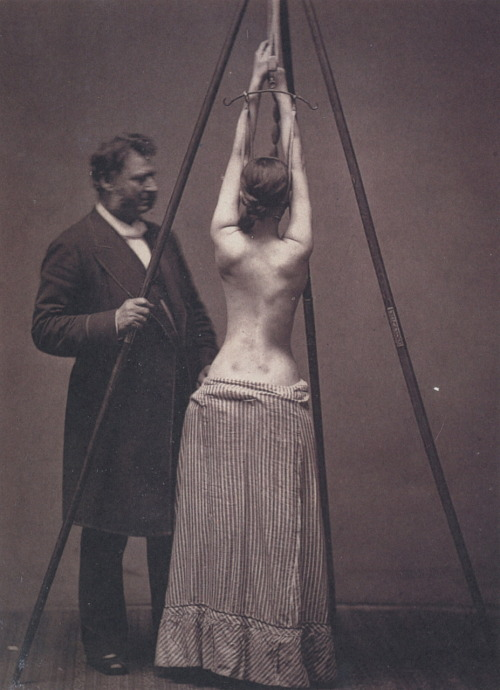 Bondage médical ? mudwerks:  liquidnight:  Louis A. Sayre, MD, with a Woman in a Suspension Device for Treating Scoliosis, London, 1877, photographer unknown From A Morning's Work: Medical Photographs from the Burns Archive & Collection, 1843-1939