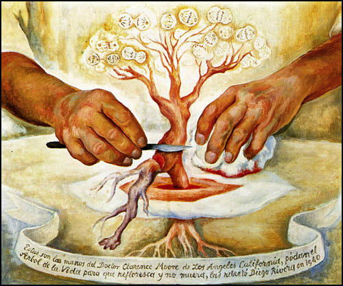 Diego Rivera - Las Manos del Dr. Moore (The Hands of Dr. Moore), 1940. Via Image of Surgery.