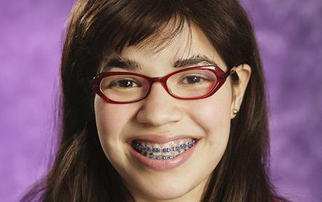 When America Ferrera had braces, they were fake. Lucky bitch.