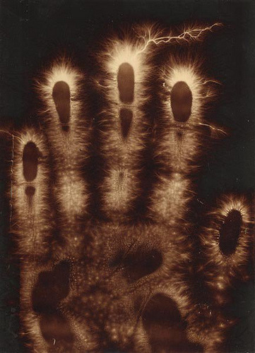 "Hermann Schnauss: ""Electrographics of a Hand,"" 1900."