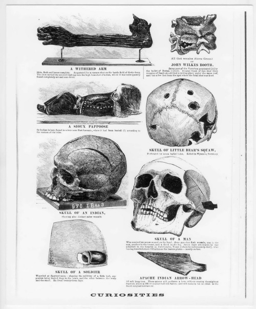 "tuesday-johnson:  ""Curiosities[from the Army Medical Museum]"", A.D. Worthington & Co, 1874 via"