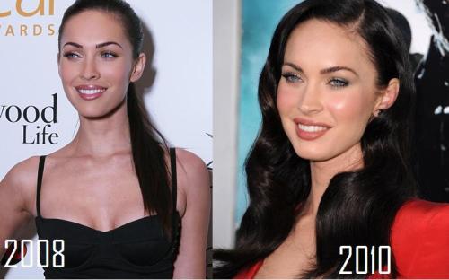 megan fox plastic surgery. Megan Fox, plastic surgery